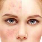 آیا جوش صورت درمان قطعی دارد؟