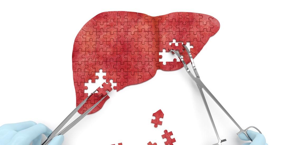 علائم، راههای درمان و پیشگیری از کبد چرب