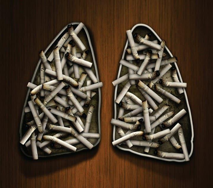 تعداد سیگارهایی که میکشید ارتباط مستقیمی با ابتلا به سرطان ریه دارد.