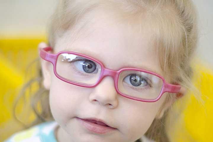 علائم و درمان تنبلی چشم