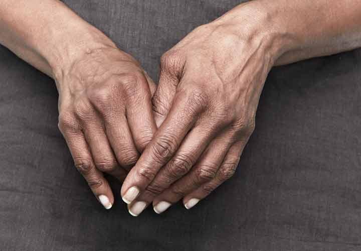کنار آمدن با درد روماتیسم مفصلی