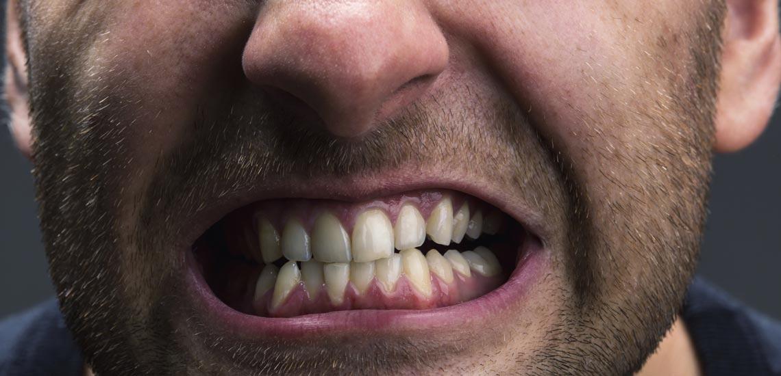 چگونه از شر دندان قروچه خلاص شویم؟