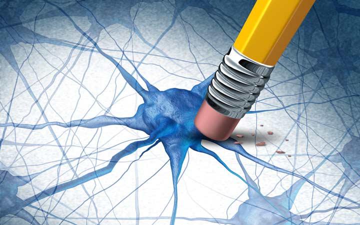 سطوح پایین دوپامین در مناطقی از مغز باعث بروز پارکینسون می شود - پارکینسون چیست