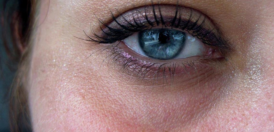 درمان سیاهی دور چشم با ۱۰ روش کاملا طبیعی
