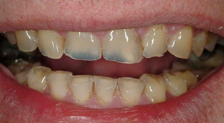 از خطرات سفید کننده های موجود در بازار آسیب مینای دندان است- سفید کردن دندان