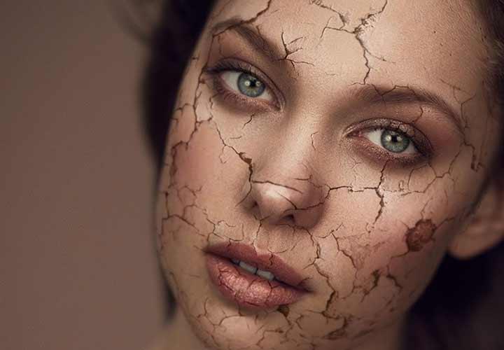 از پوست خشک چگونه مراقبت کنیم؟