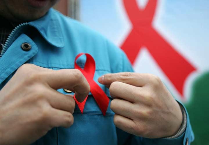 تابعیت از درمان در بیماری ایدز