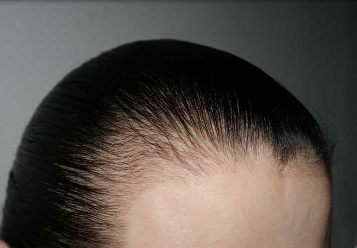 ریزش موی ارثی یا آندروژنیک - درمان ریزش مو
