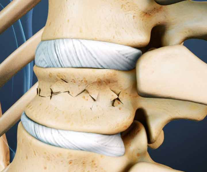 شکستگی فشاری - انواع کمردرد