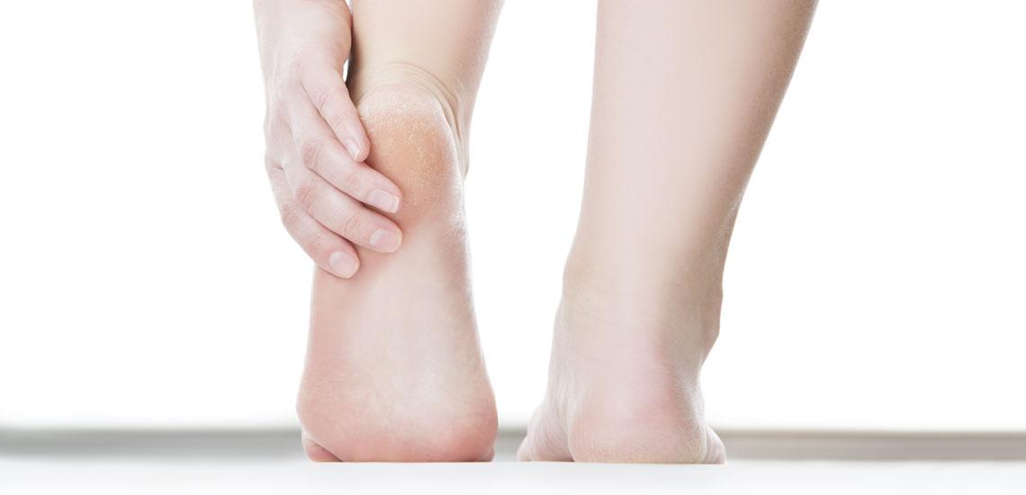 درمان ترک پا با چند روش موثر خانگی