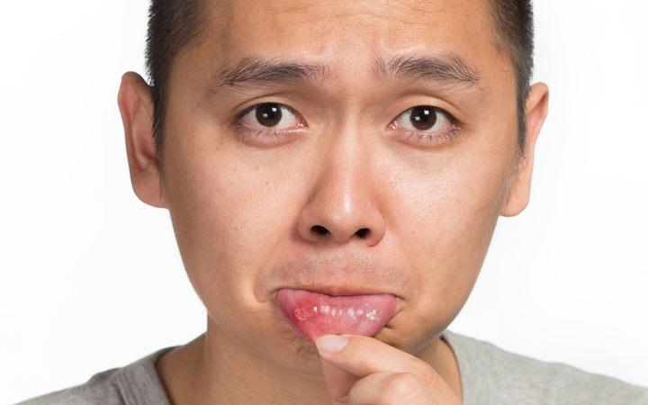 آفت دهان معمولا زخمی گرد یا بیضی شکل سفید یا زرد رنگ است که دور تا دور آن قرمز شده باشد ـ درمان آفت دهان