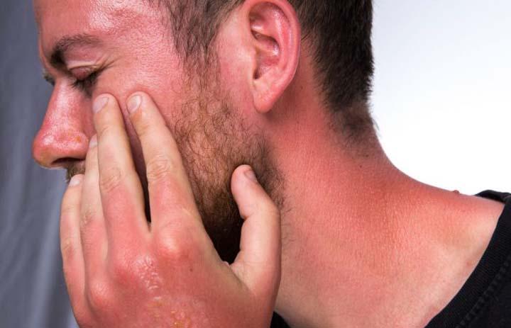 درمان آفتاب سوختگی با جدا نکردن پوسته ها