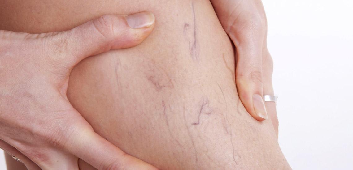 درمان واریس پا با ۵ روش خانگی و موثر