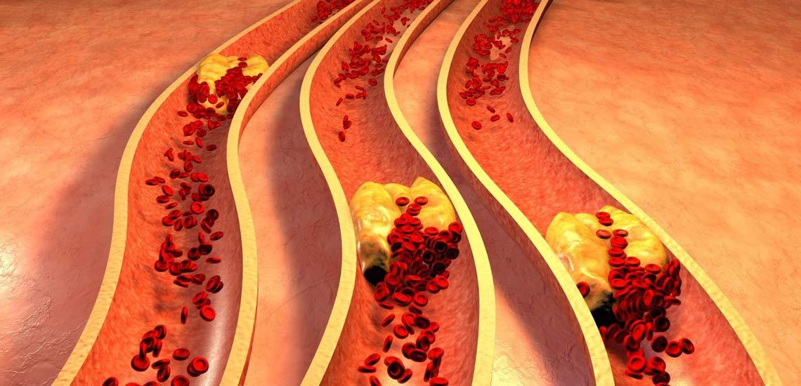درمان چربی خون؛ علائم و نحوه تشخیص آن