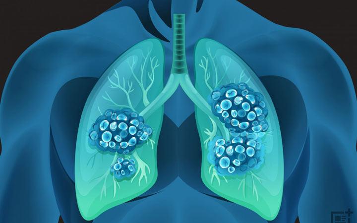 برونشیت حاد یک بیماری مسری است - پیشگیری از برونشیت