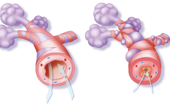برونشیت و سینهپهلو هر دو ریهها را بیمار و عفونی می کنند - برونشیت