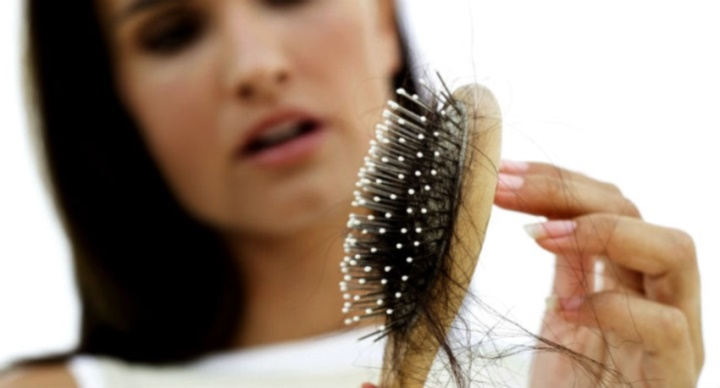علت ریزش مو - ریزش مو در دوران نوجوانی