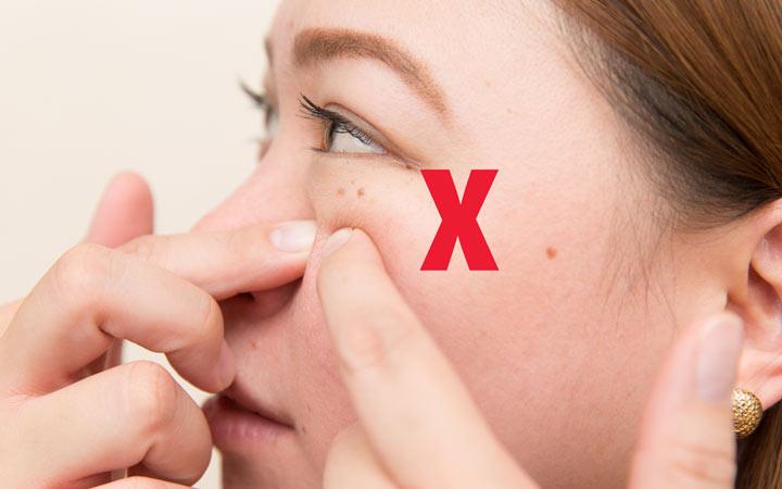 به جوشهای صورتتان دست نزنید - مراقبت از پوست
