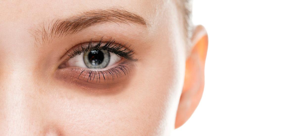درمان پف زیر چشم با ۱۲ توصیه ساده اما موثر
