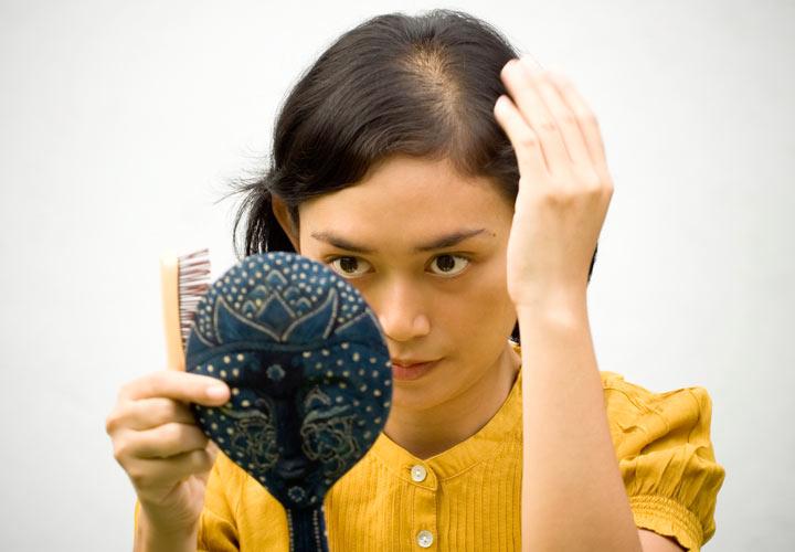 کمپشت شدن مو - ریزش مو در بارداری