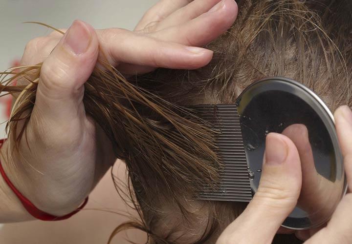 شانه نیت - درمان شپش سر
