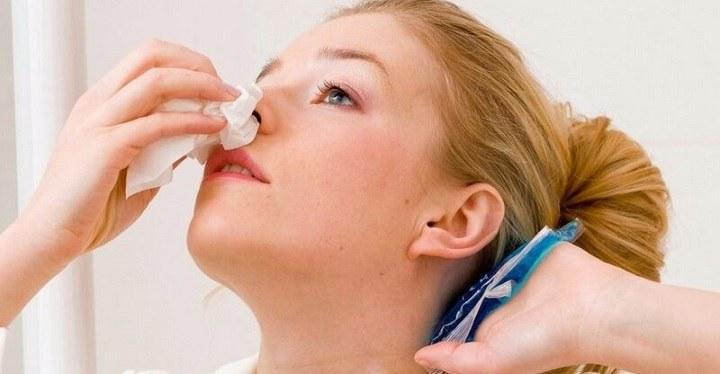 خونریزی بینی - جلوگیری از خونریزی مجدد