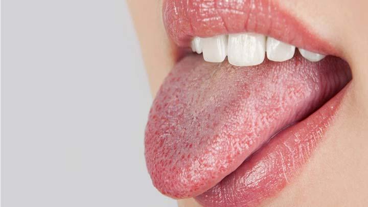 خشکی دهان - نشانه مصرف بیش از حد شکر