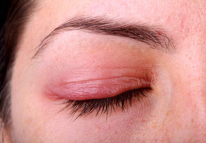 التهاب پلک - پریدن پلک