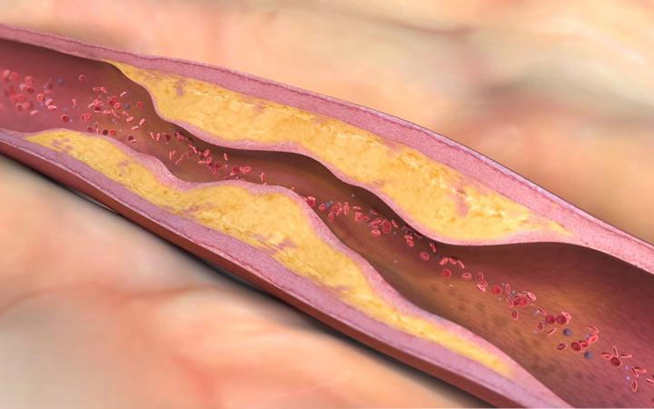 دلایل و نشانه های گردش خون ضعیف - بیماری عروق محیطی