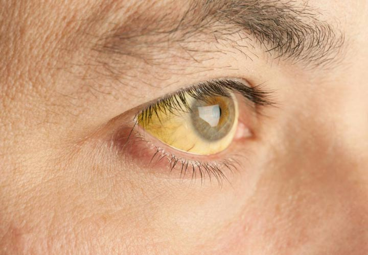 زردی چشم - هپاتیت