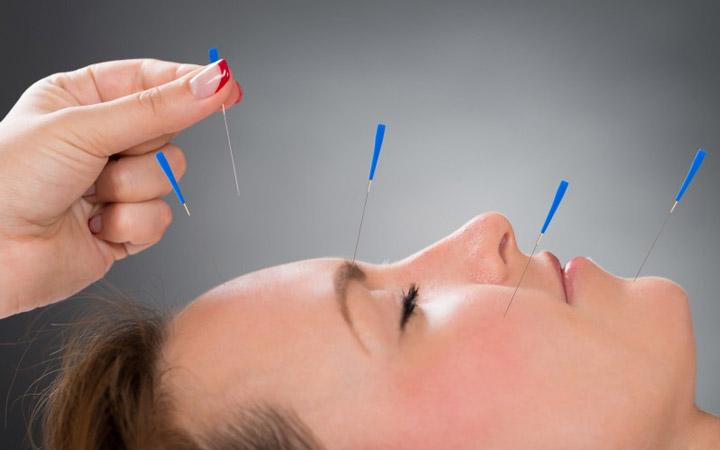 درمان سردرد - طب سوزنی