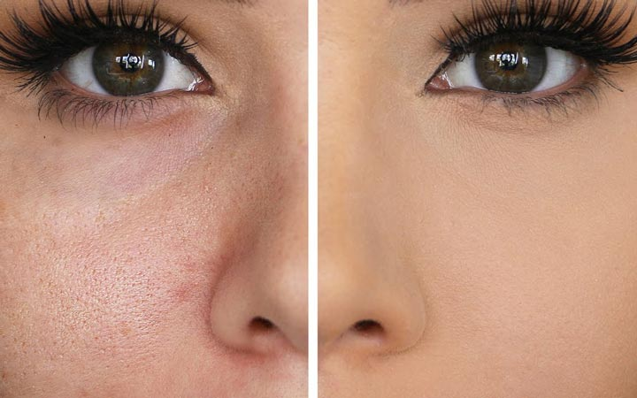 پوست خود را پاکیزه نگه دارید - منافذ باز پوست