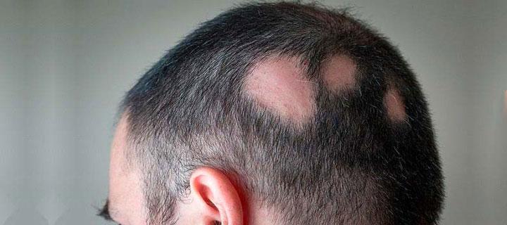 علت ریزش موی سکه ای