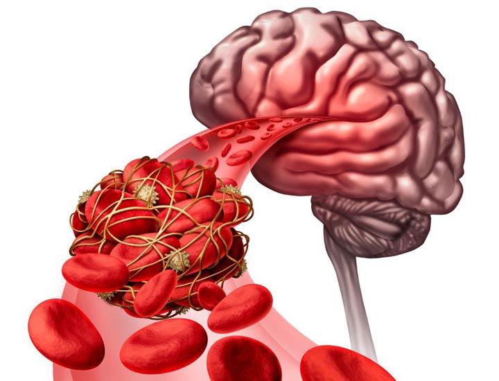 لخته خون - لخته خون مغزی