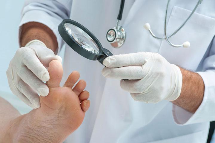 سیاه شدن ناخن پا - درمان