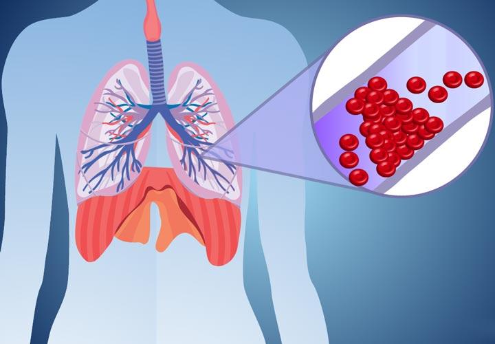 علل - آمبولی ریه