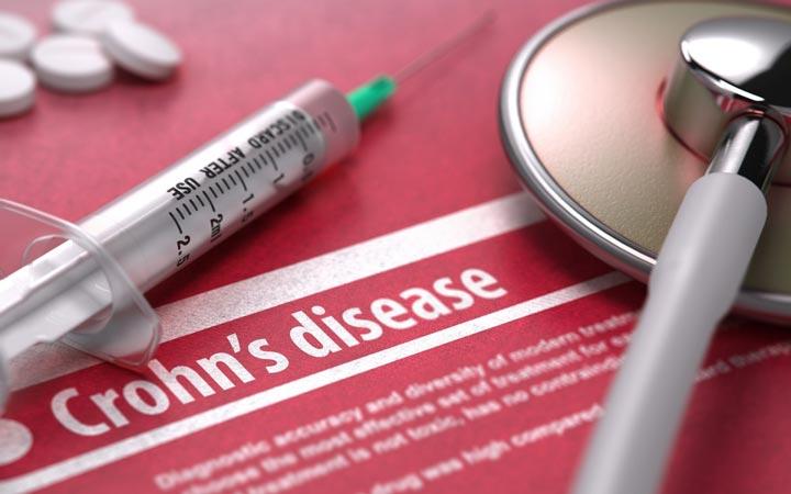 بیماری کرون - داروهای مورد استفاده