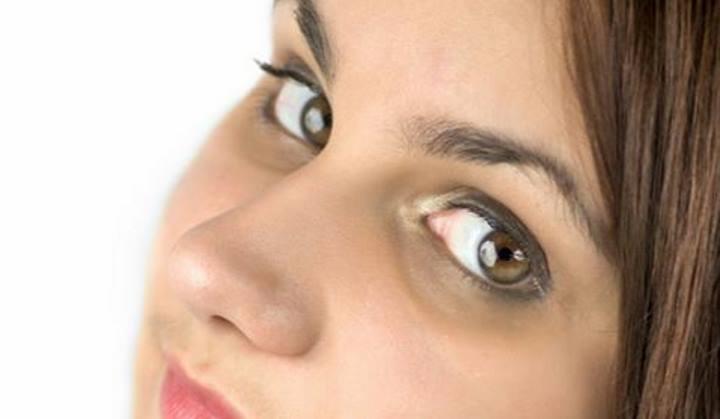 برای جلوگیری از ایجاد حلقه های تیره زیر چشم، بدن خود را هیدراته کنید
