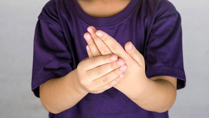 التهاب مفاصل+ رماتیسم اطفال