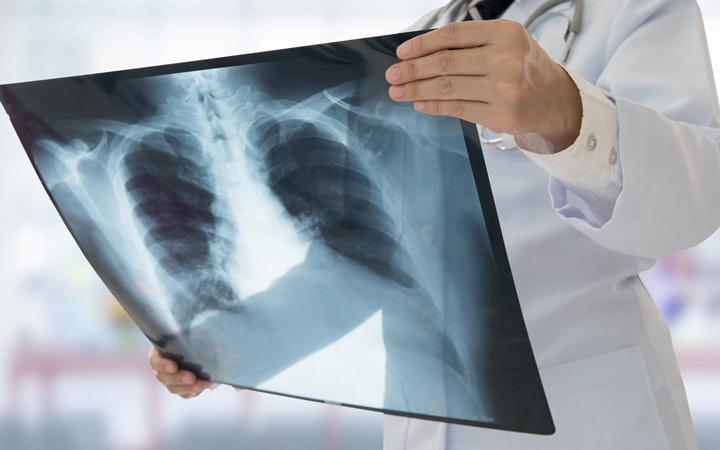 بیماری سل - سل بیشتر از هر چیز ریه ها را درگیر میکند