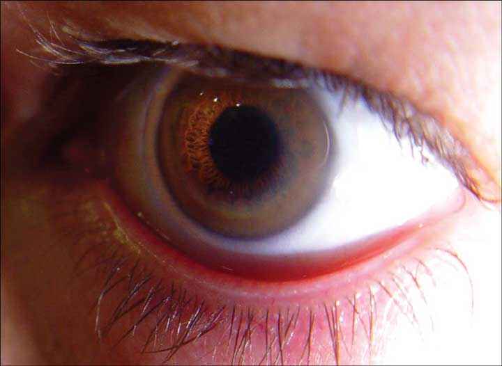 بیماری ویلسون - علائم