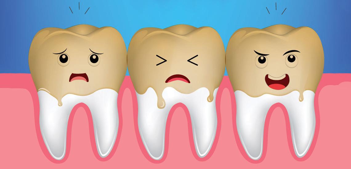 ۱۴ خوراکی که موجب زرد شدن دندان های شما می شوند