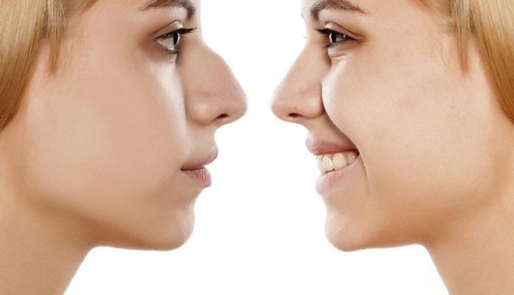 نتیجه تصویری برای جراحی بینی