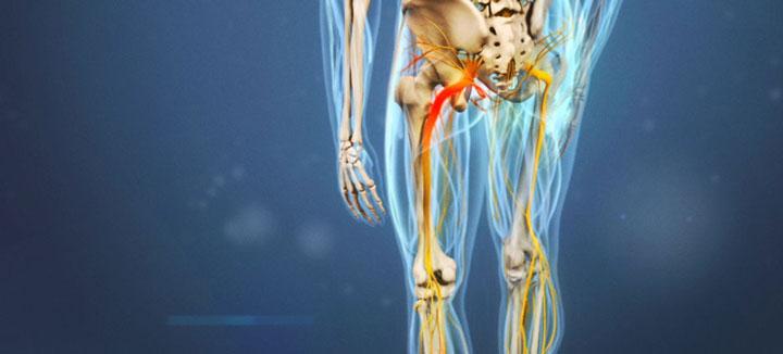 درمان دیسک کمر - فیزیوتراپی