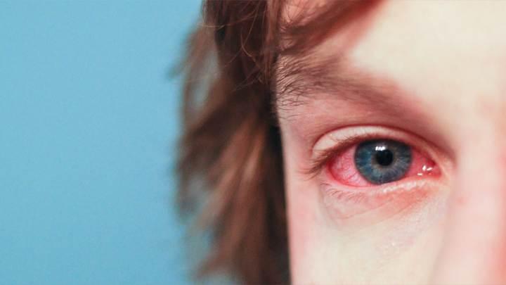 آلرژی به گربه - علائم