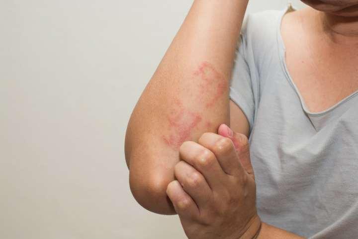 آلرژی چیست - علائم