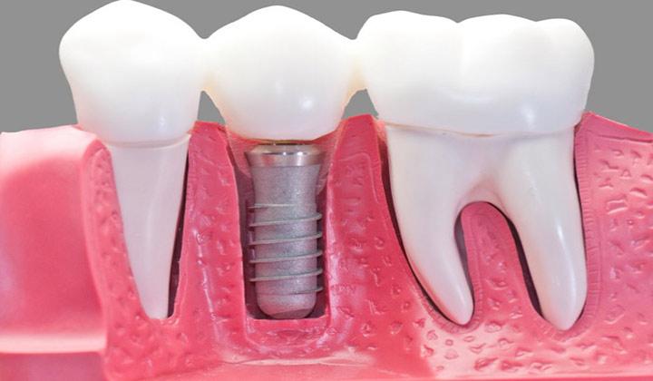پروتز دندان