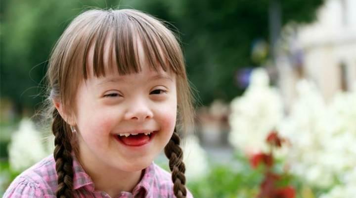 مراقبت از فرزندی با سندرم داون - حمایت از مبتلایان به سندرم داون