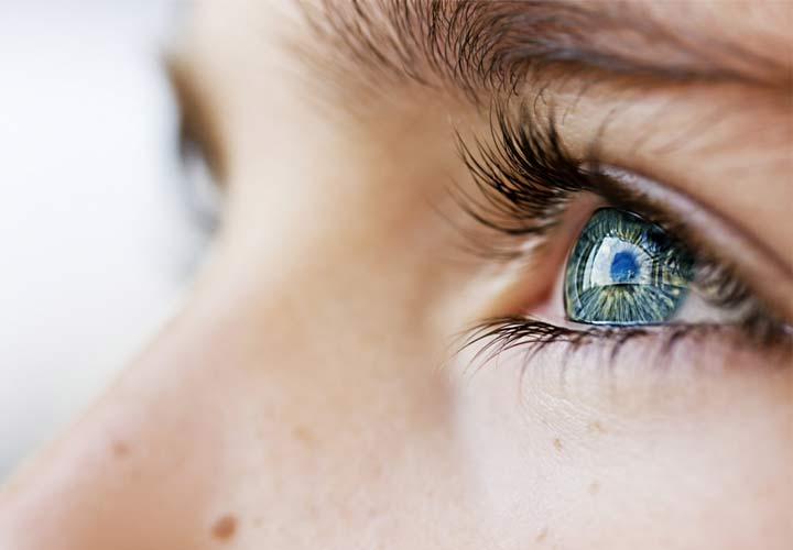 افزایش فشار چشم به بالاتر از ۲۱ میلی متر جیوه فشار چشم نامیده می شود.