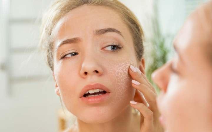 خشکی پوست - علائم خشکی پوست
